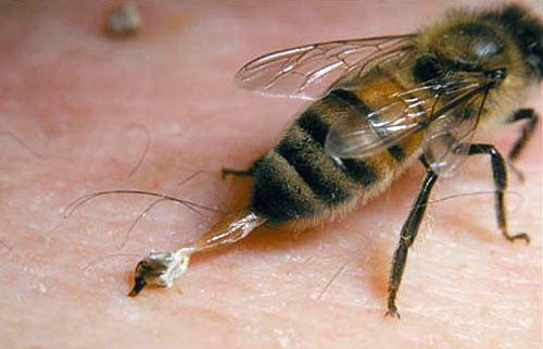 sengat lebah